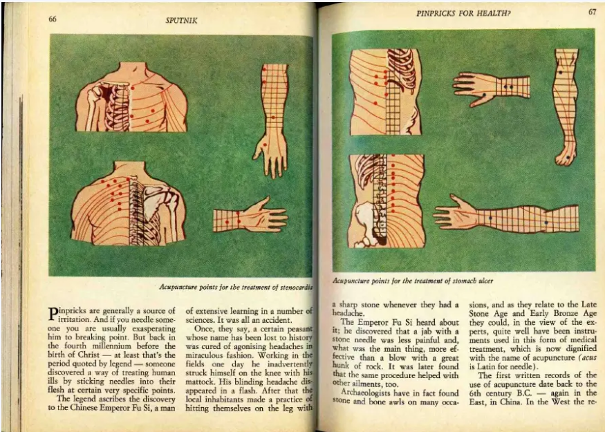 Acupuncture Points That Make You Psychic